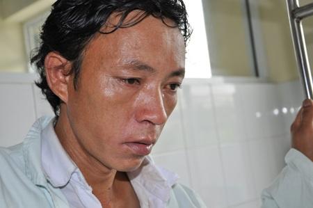 Tai nạn bỏng xăng khiến cho cơ thể bé Phủ bị tổn thương nghiêm trọng