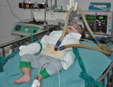 Ánh mắt cầu cứu của bé 5 tháng tuổi bị tim bẩm sinh