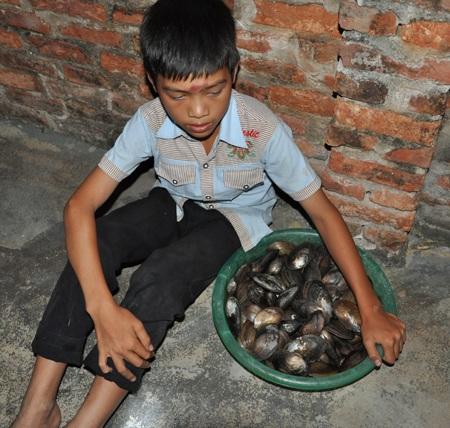 Với những mẻ chai như thế này, cậu bé Hà vẫn tràn đầy hi vọng có thể cứu được mẹ.