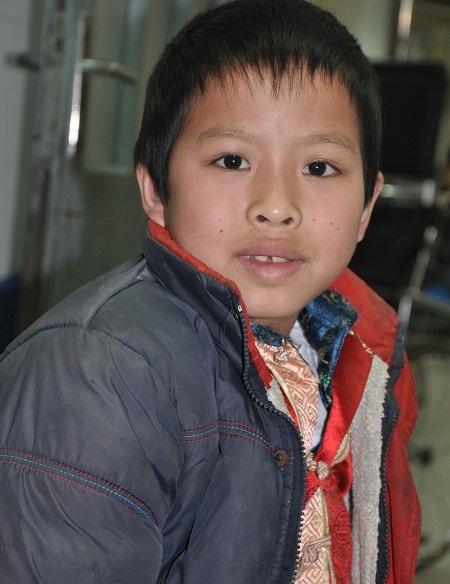 Gương mặt tươi tắn của cậu bé Lý Bình Minh sau ca phẫu thuật.