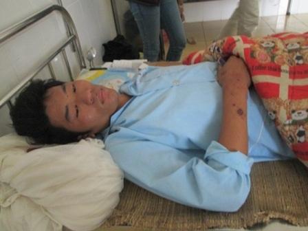 Anh Bùi Hữu Nam với đa vết thương trên cơ thể.