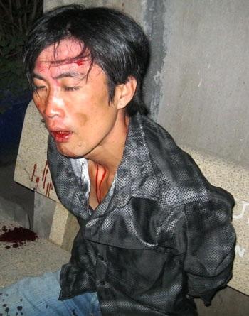"""Tên cướp giật trên phố bị """"hiệp sĩ"""" khuất phục sau 10km truy đuổi"""