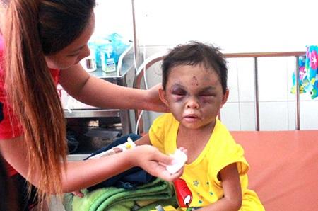 Bé Ngân đang được điều trị tại bệnh viện với nhiều thương tích nghiêm trọng