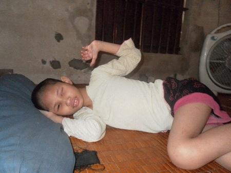 Căn bệnh bại não khiến Nguyễn Thị Hường bị mù 2 mắt, không thể tự vận động được