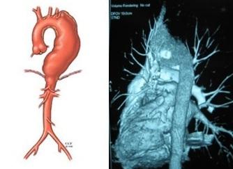 Cứu sống bệnh nhân bị phình động mạch chủ ngực đoạn quai phức tạp