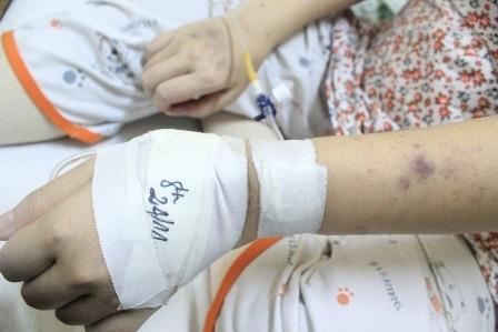 Những vết đen trên tay thai phụ Nguyễn Thị Minh là dấu hiệu của việc giảm tiểu cầu trong máu nặng
