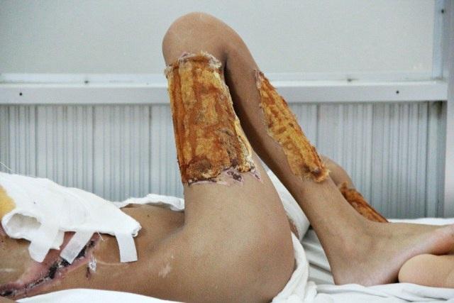 Các bác sĩ phải lấy da ở chân để đắp lên những vết bỏng nặng của Ánh