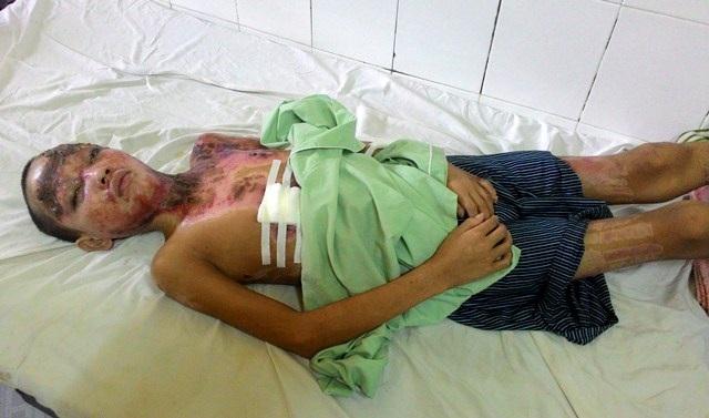 Trao hơn 44 triệu đến cậu bé người dân tộc Cơ Tu bị bỏng nặng