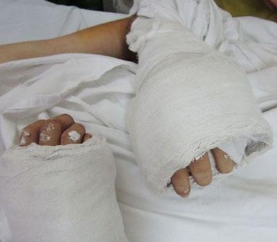 Bàn tay của bệnh nhân sau hơn 12h được ghép đã có dấu hiệu sống lại. Ảnh: BS cung cấp.