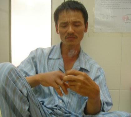 Hà Nội: Nhiều bệnh nhân phải nhập viện vì chuột cắn
