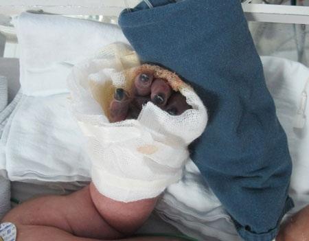 5 đầu ngón tay của cháu bé bị thâm đen