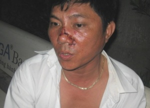 Tài xế Mai Linh bị đánh ngay tại công ty  - 1