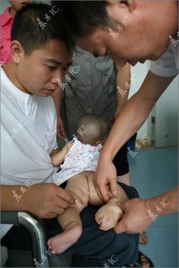 Bé gái chào đời với 3 bàn chân - 3