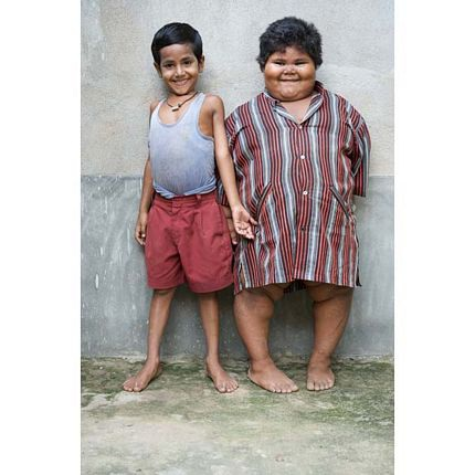 5 tuổi nặng 76kg - 10