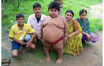 5 tuổi nặng 76kg - 4