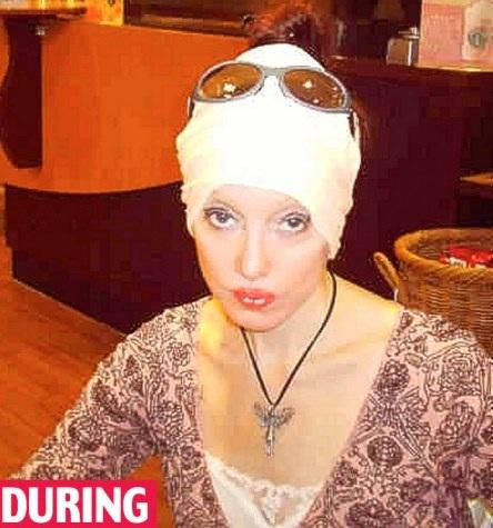 Người phụ nữ và 51 cuộc phẫu thuật để trở thành Nữ hoàng Ai Cập - 2