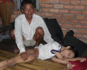 Người cha ung thư bên đứa con nhiễm chất độc da cam - 1