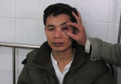 Một thầy giáo vô cớ bị hành hung đến nhập viện - 1