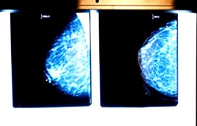 5 đột phá y học thế giới 2009 - 4