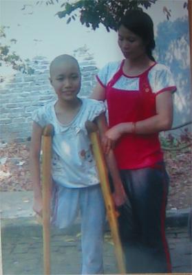 Niềm ước ao của bé 12 tuổi bị ung thư cẳng chân - 2