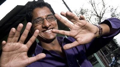 Chàng thanh niên có 12 ngón tay, 14 ngón chân - 1
