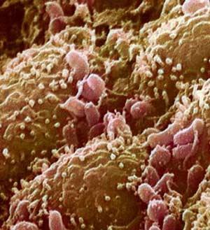 Béo - Lỗi tại vi khuẩn - 1