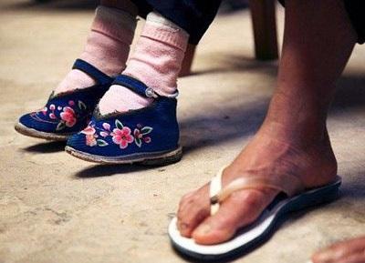 Người phụ nữ có bàn chân nhỏ nhất thế giới - 3