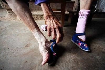Người phụ nữ có bàn chân nhỏ nhất thế giới - 1