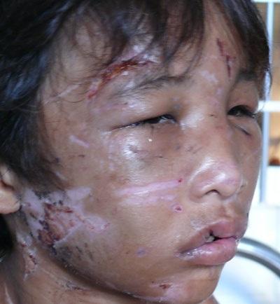 Cháu bé 14 tuổi bị hành hạ như thời trung cổ - 2