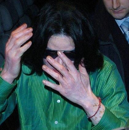 Con trai của Michael Jackson cũng gặp vấn đề về da - 3