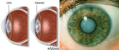 Suy giảm thị lực dẫn đến mù lòa ở người cao tuổi: Nguyên nhân và giải pháp - 1