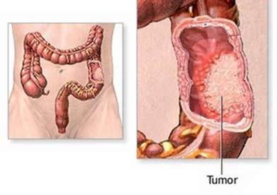Ung thư đại trực tràng: Phát hiện sớm, 90% là chữa khỏi - 1