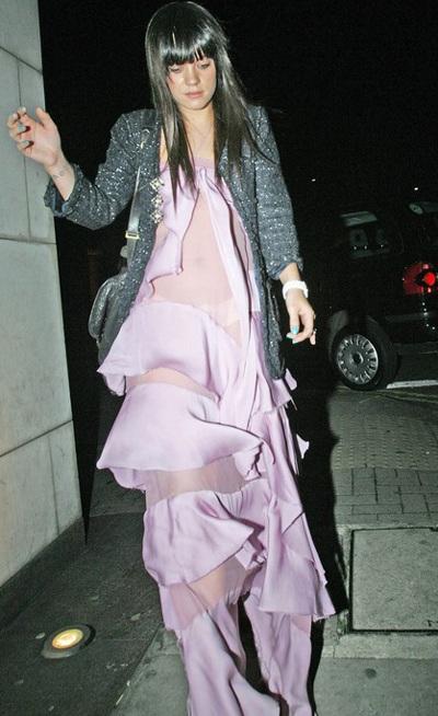 Hai chiếc váy kỳ dị của Lily Allen và Diana Ross - 8