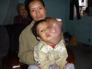 """Em bé 5 tuổi đau đớn """"gánh"""" khối u trên mặt - 1"""