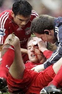 """Cú đúp """"ngã"""" của Gerrard và chiến thắng cho Liverpool - 2"""