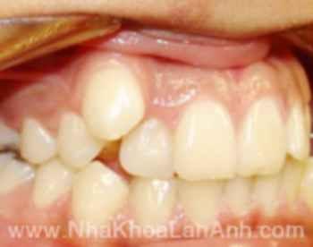 Làm gì khi răng mọc lệch lạc, hô hay móm? - 1