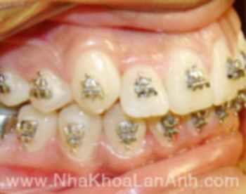 Làm gì khi răng mọc lệch lạc, hô hay móm? - 2