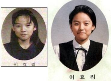 Lee Hyori từng phẫu thuật thẩm mỹ? - 3