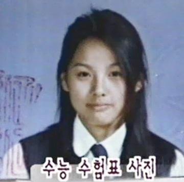Lee Hyori từng phẫu thuật thẩm mỹ? - 4