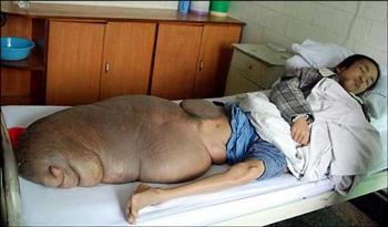 Người đàn ông có chiếc chân nặng 70kg - 1