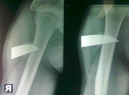 Quảng Bình: Phẫu thuật lấy lưỡi dao gần 7cm nằm trong cánh tay