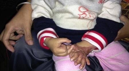Đôi vợ chồng nghèo luôn cầu mong một phép màu sẽ đến để cứu lấy đôi tay của bé Hoàng Quân