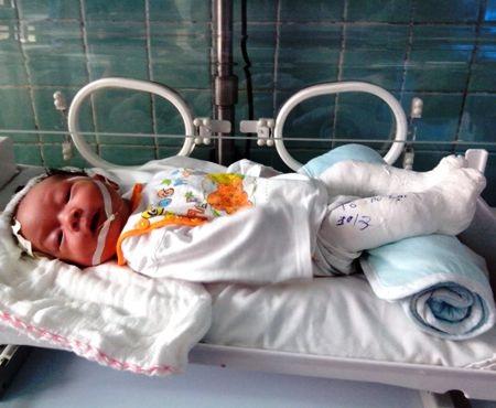 Hình ảnhbé sơ sinh đa dị tật bị bỏ rơi nơi bệnh viện