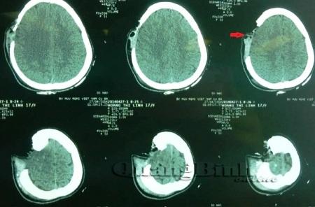 Phim CTscaner của bệnh nhân L. cho thấy xương sọ bị khuyết một mảng (Ảnh: các bác sĩ cung cấp)