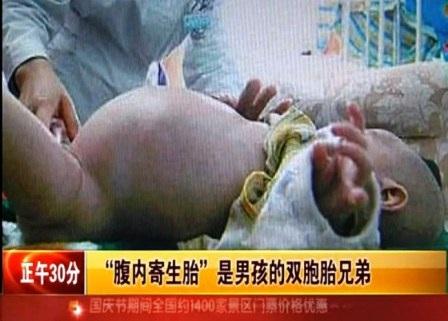 Bé trai 2 tuổi mang bào thai ký sinh.