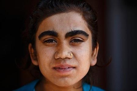 Manjura sau khi đã được các bác sĩ điều trị loại bỏ lông lá