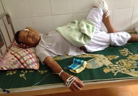 Ông Trần Minh Đố (63 tuổi) bị côn đồ truy sát chém trọng thương phải điều trị tại bện viện.