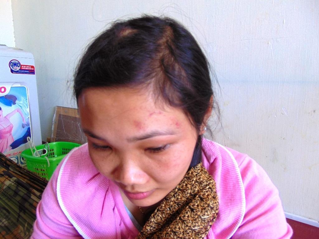 Chị Hậu tố cáo bị hai mẹ con cô giáo L. dùng dép, guốc đánh vào đầu, lưng, mặt.