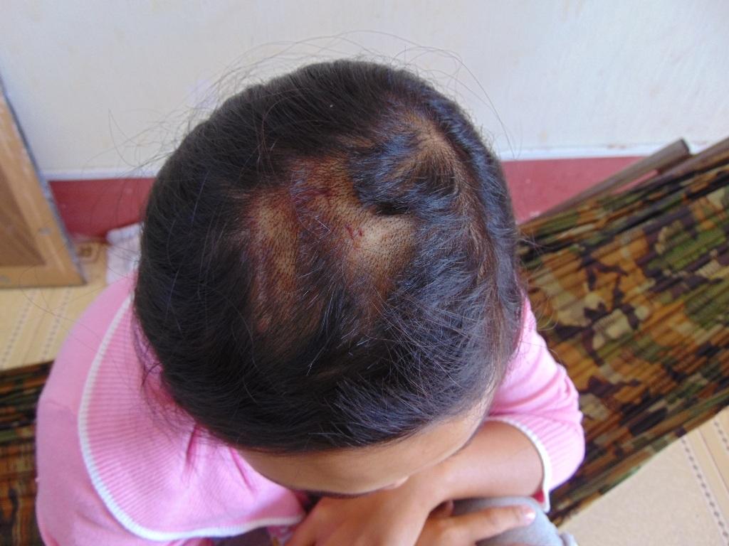 Vết thương trên đỉnh đầu chị Hậu.