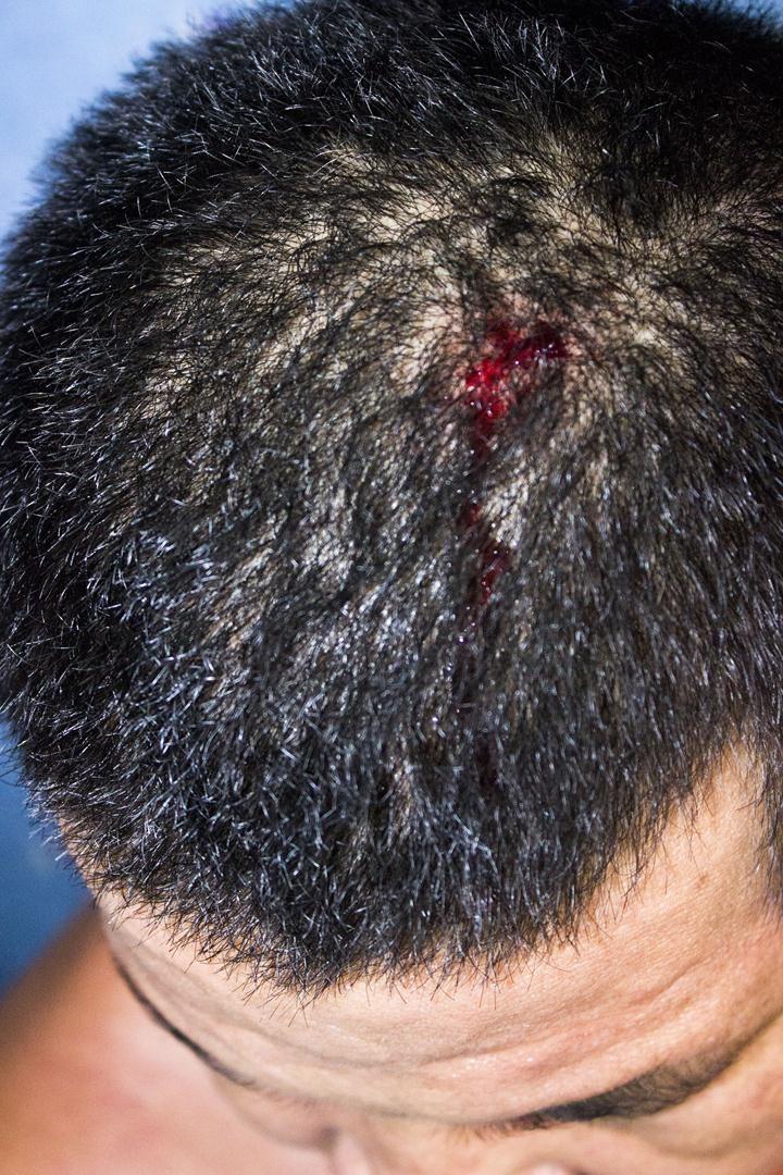 Đầu anh T. bị chảy máu vì hứng trọn cục đá